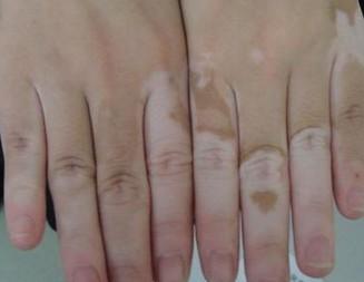 手部患白癜风的原因都有哪些呢