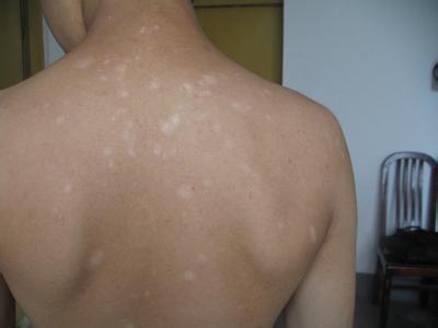 背部白癜风在治疗期间应该注意什么