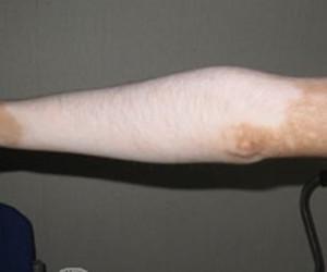手部白癜风的护理措施有哪些