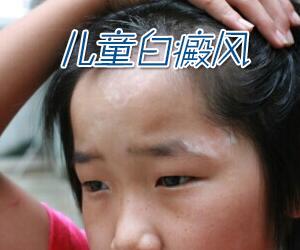 儿童白癜风的症状有哪些