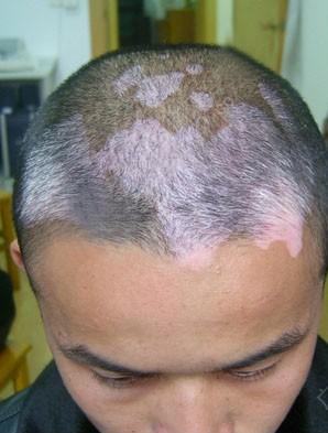 导致头部白癜风恶化有哪些原因