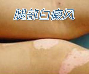 治疗腿部白癜风的需要注意哪些