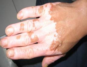 手部白癜风怎么正确预防