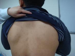 如何护理背部白癜风