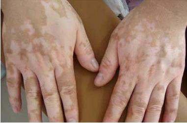 白癜风治疗:手部白癜风危害是什么