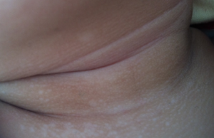 白癜风患者论坛:颈部白癜风常见的诱因有哪些
